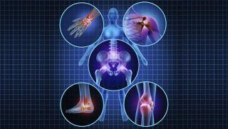 در مورد آرتروز و روشهای تشخیص و درمان آن چه میدانید؟