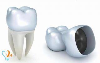 بیلداپ (Build Up) یا بازسازی دندان